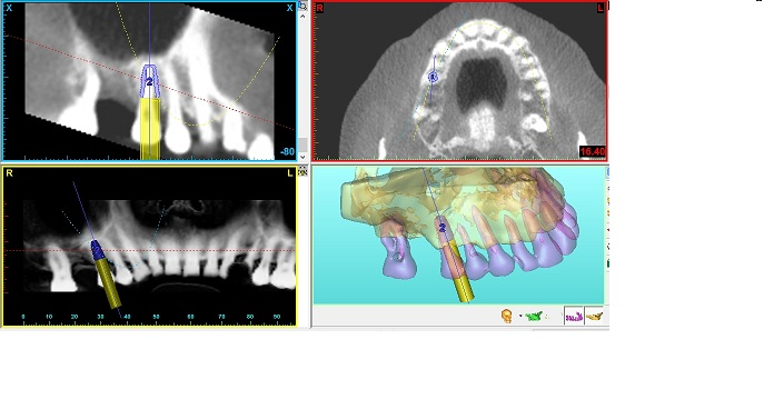 Planning a single implant tooth replacement
