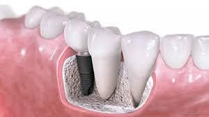 Single Implant treatments by Dr Sandra Short